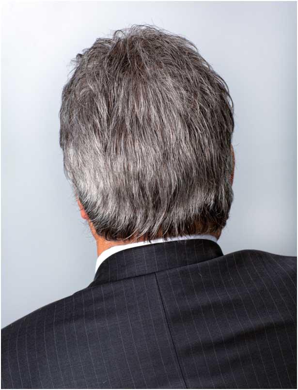 Mens Hair Pieces | Cork Hair Clinic | Wigs Cork